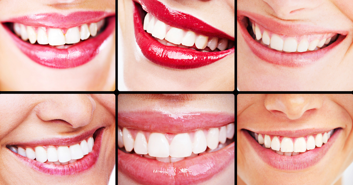 dca-blog_article-38_crowns-veneers-lumineers_1200x630
